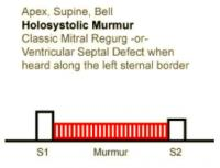 Heart Sounds 09 Apex, Supine, Bell Holosystolic Murmur, classic mitral regurgitation or Ventricular septal defect when heard along the left sternal border.mp3
