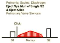 Heart Sounds 23 Pulmonic, Supine, Diaphragm, Ejection systolic murmur with single S2 and Ejection click, Pulmonary valve stenosis .mp3