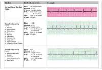 EKG Flash Chart (Characteristics of EKG types .pdf